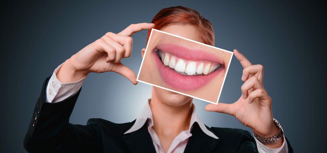 Sourire et dents