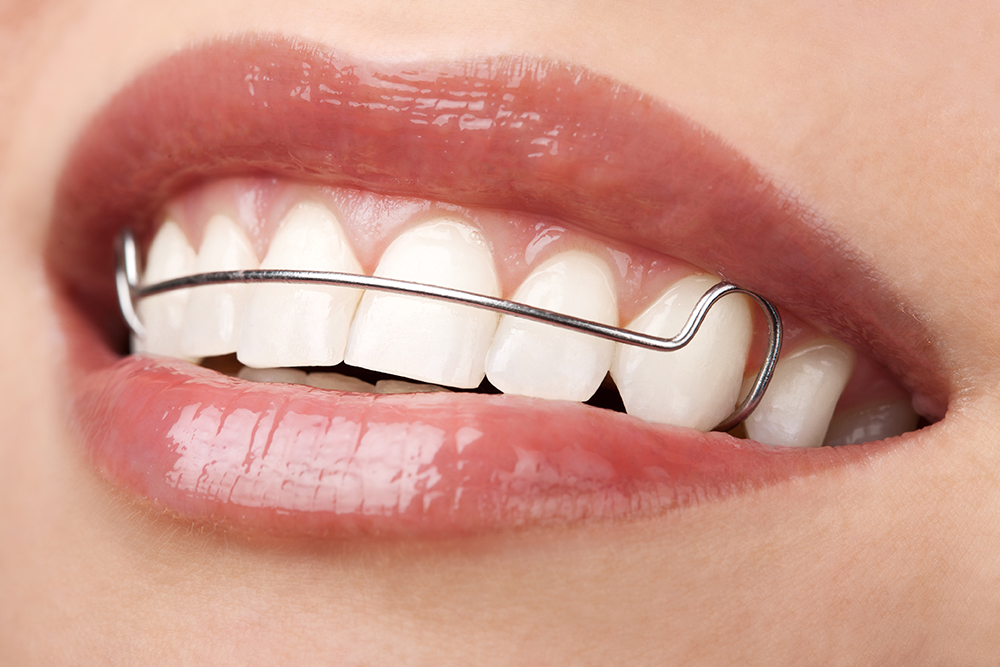 alignement de dents