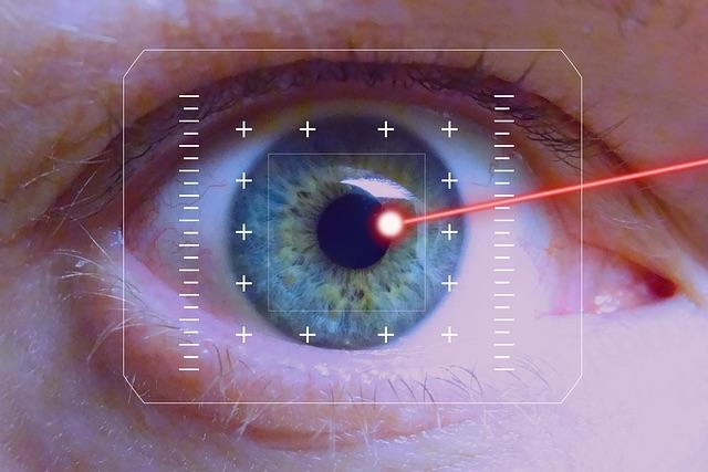 "Chirurgie lazer des yeux""Lasik"""