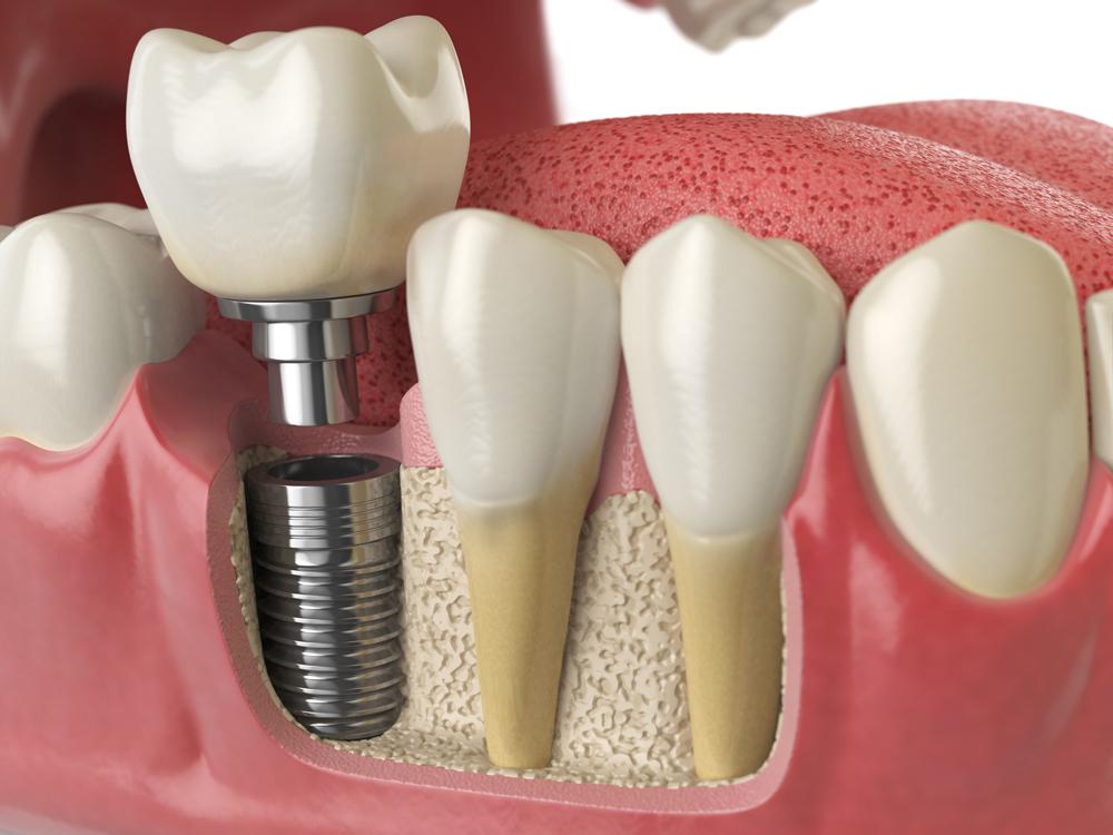 prix prothèse dentaire
