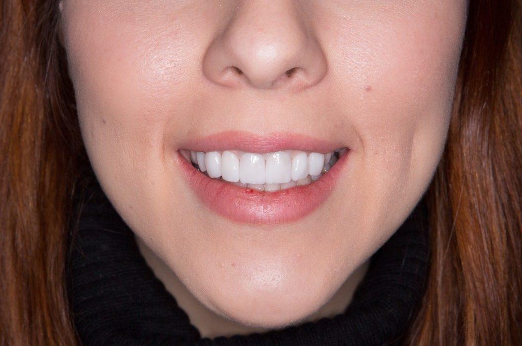 remboursement facette dentaire