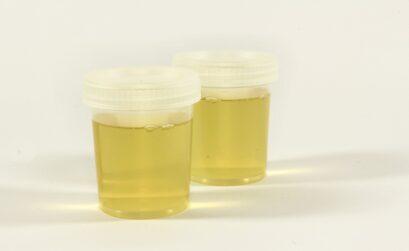 thérapie urinaire