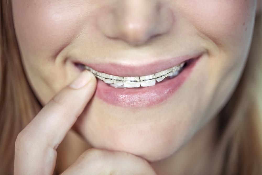 traitement orthodontique adulte